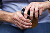 Multiple medical conditions linked to arthritis-causing disease - Photo: ©iStock/bloodstone