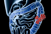 BMI is a risk factor for colorectal cancer death - Photo: ©iStock/Raycat