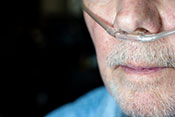 Mechanism behind COPD lung damage - Photo: ©iStock/wwing