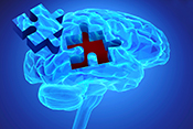 Three gene variants linked to Alzheimer's disease - Photo: ©iStock/malgorzata tatarynowicz
