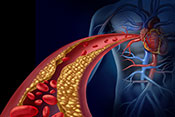 Detecting coronary heart disease using genetic data - Photo: ©iStock/wildpixel