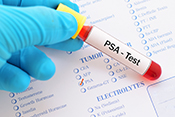 Low-value prostate cancer screening prevalent in VA - Photo: ©iStock/jarun011