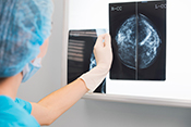 Electronic trigger detects mammogram follow-up delays - Photo: ©iStock/thomasandreas