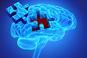 Oxytocin fails to boost social cognition in schizophrenia trial - Illustration: ©iStock/goa_novi