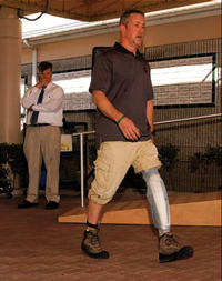 Evidence-based Prosthetics is Focus of New Workshops