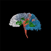 Psychological effects of TBI -
