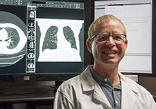 Study finds shortcomings in how doctors talk about lung nodules