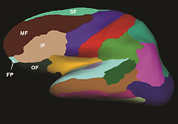 The graphic shows the brain regions that were examined in Dr. Linda Chao's MRI study of Gulf War Veterans and the link between their sleep quality and