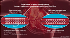 Drug-eluting stents safe for use in vein grafts, VA study finds