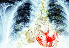 For low-risk patients, screening for lung cancer can be a choice