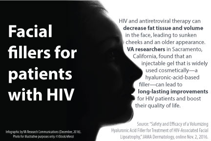 Facial fillers for patients with HIV